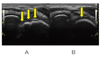 関節軟骨表面